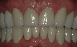 Patient with full coverage ceramic esthetic crowns