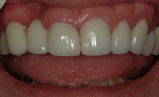 Patient with complete smile makeover