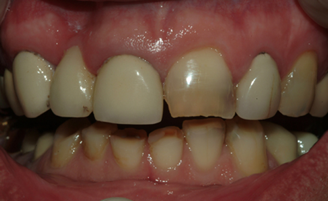 Patient with severe tooth Staining