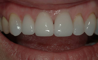 Patient with more esthetic ceramic crown