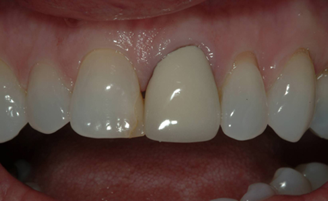 Patient with severely discolored front tooth