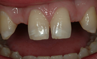 Patient with genetically missing teeth